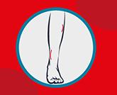 épilation définitive demi jambes