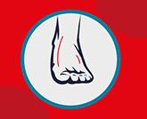 épilation définitive pieds