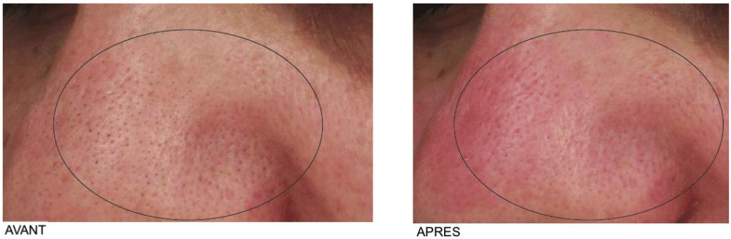 points noirs sur le nez avant après extraction des comédons
